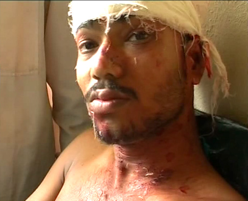 villager with head injury